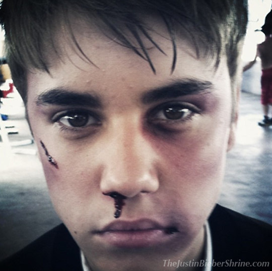 justinbieberbeatuppicture Justin Bieber got beat up badly picture!! 2011