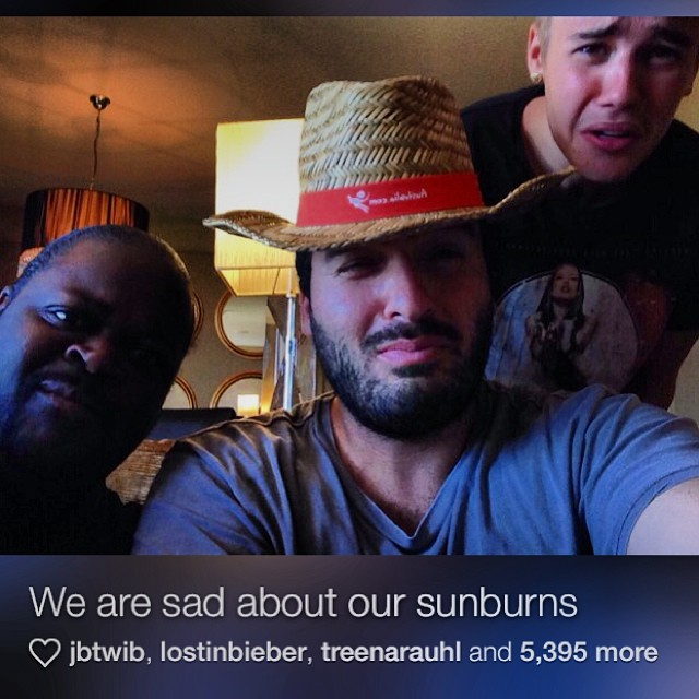 justin-bieber-sunburn-sad-perth-australia-2013